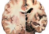 A New Israeli Drug to Treat Alzheimers Disease